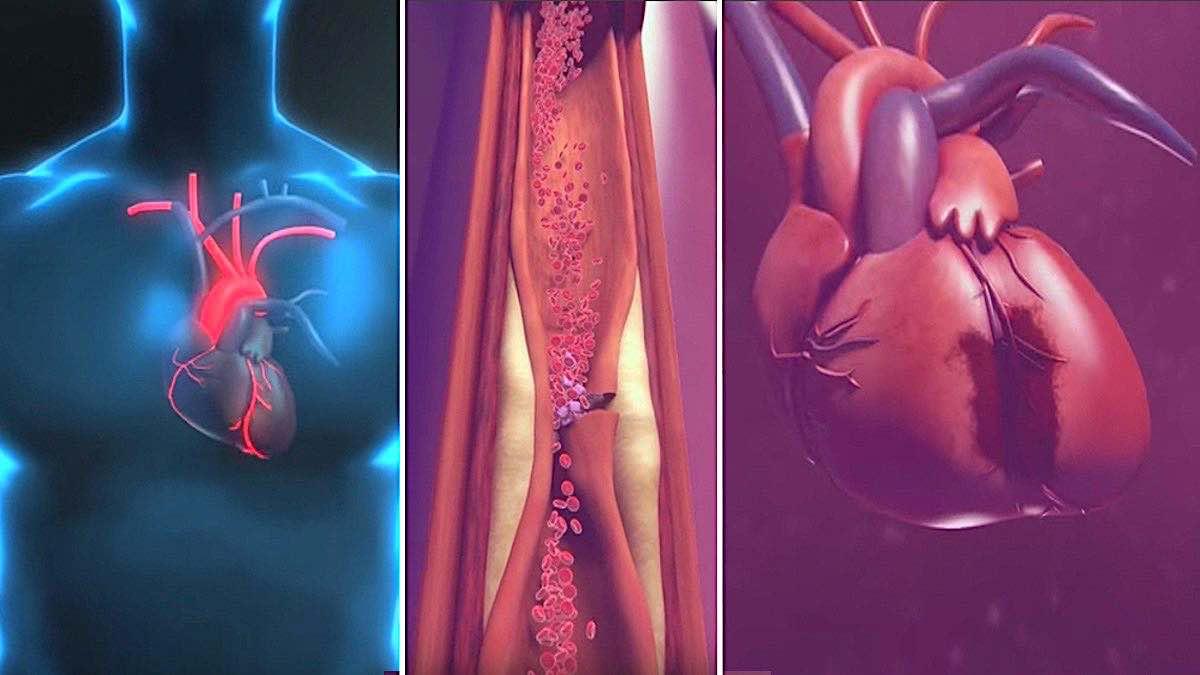 prevedere un infarto