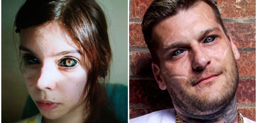 tatuaggio negli occhi
